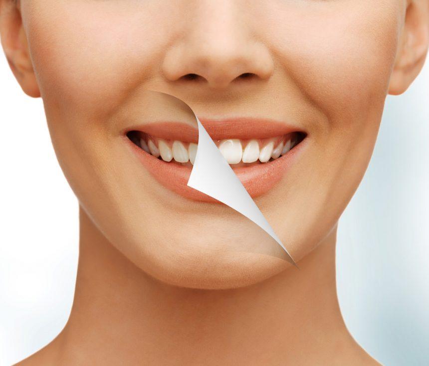 Gum Aesthetics